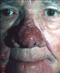 Subtype 3 rosacea before