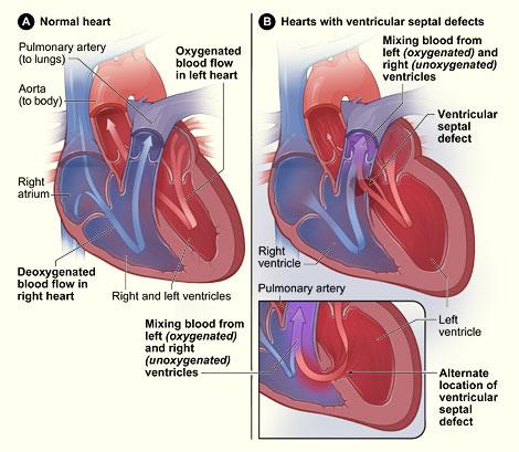 Ventricular Septal Defect Anatomy