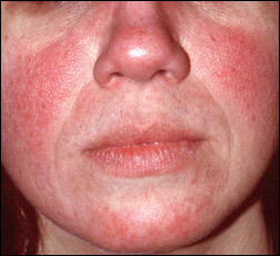 rosacea redness