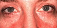 Ocular Rosacea 2