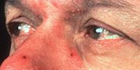 Ocular Rosacea 3