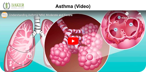 Asthma Patient Education Video